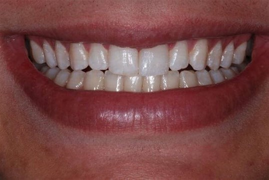 Smile View After