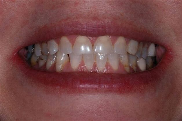 Full Mouth Restoration Case 2 Before