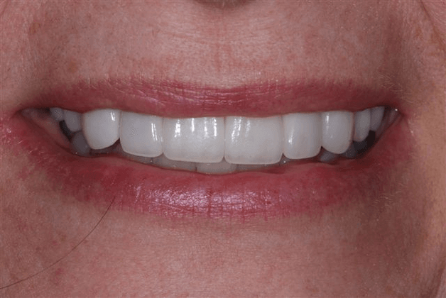 Smile Design After